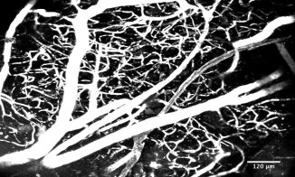 Brain vasculature in the olfactory bulb, labelled with TexasRed-Dextran